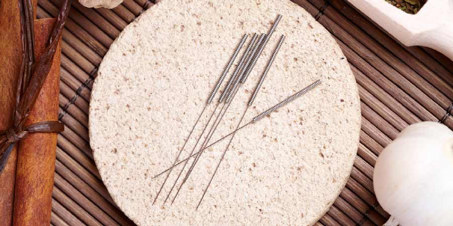 acupuncture needles on table