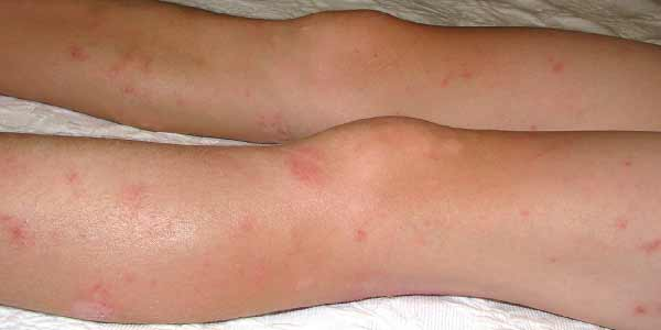 A young person with Eczema on their legs